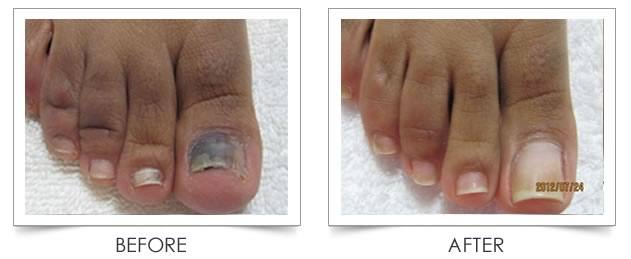 You can get rid of nasty toenail fungus with natural ingredients you ...